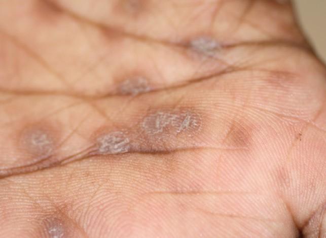 symptom tertiare syfilis