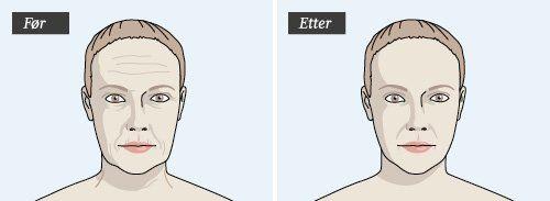 ansiktsnervforskning